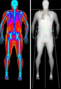 Dexa Scan at Week 5